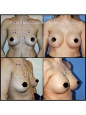 Breast Implants - ClinicPlast