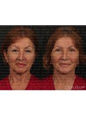 Лифтинг лица (Подтяжка лица) - Dr. Ali Rıza Öreroğlu Aesthetic Clinic