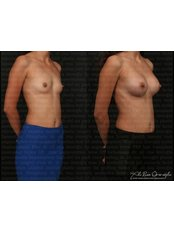 Breast Augmentation - Dr. Ali Rıza Öreroğlu Aesthetic Clinic