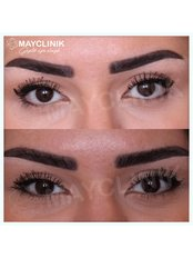 Canthoplasty&Brow Lift - MayClinik Plastic Surgery