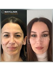 Endoscopic Facelift - MayClinik Plastic Surgery