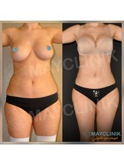 Laser Assisted Liposuction - MayClinik Plastic Surgery