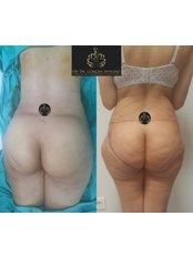 Liposuction - Op. Dr. Gökçen Ayyıldız Estetik Cerrahi Kliniği