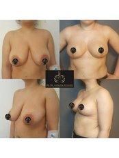 Breast Reduction - Op. Dr. Gökçen Ayyıldız Estetik Cerrahi Kliniği