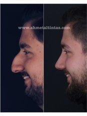 Open Rhinoplasty - Op.Dr.Ahmet Altıntaş