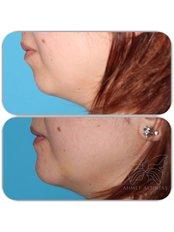 Chin Implant - Op.Dr.Ahmet Altıntaş