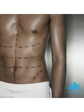 Fettabsaugung / Liposuktion - Surgery İstanbul