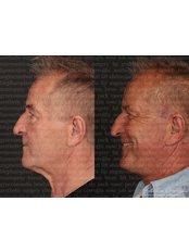 Facelift - Dr. Ali Rıza Öreroğlu Aesthetic Clinic
