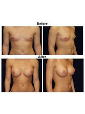 Грудные импланты (Импланты груди) - IHT - International Health Tourism