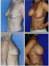 Лифтинг груди (Подтяжка груди) - IHT - International Health Tourism