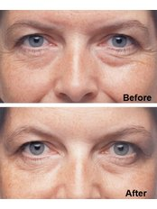 Treatment for Lines and Wrinkles - IHT International Health Tourism