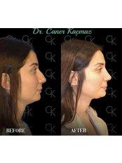 Rhinoplasty - Dr. Caner Kacmaz Clinic