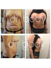 Mommy Makeover - Dr. Caner Kacmaz Clinic