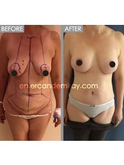 Tummy Tuck - Dr Ercan Demiray MD, Aesthetic and Plastic Surgeon