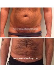 Lipoabdominoplasty - Dr Ercan Demiray MD, Aesthetic and Plastic Surgeon