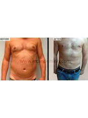 Gynecomastia - Dr Ercan Demiray MD, Aesthetic and Plastic Surgeon