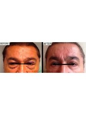 Eyelid Surgery - Dr Ercan Demiray MD, Aesthetic and Plastic Surgeon