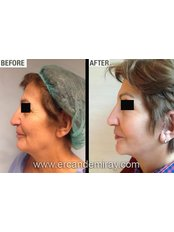 Neck Lift - Dr Ercan Demiray MD, Aesthetic and Plastic Surgeon