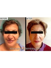 Endoscopic Facelift - Dr Ercan Demiray MD, Aesthetic and Plastic Surgeon