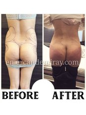 Butt Lift - Dr Ercan Demiray MD, Aesthetic and Plastic Surgeon