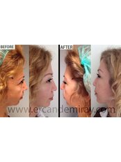 Mini Facelift - Dr Ercan Demiray MD, Aesthetic and Plastic Surgeon