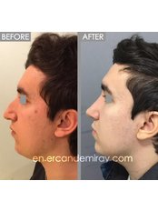Open Rhinoplasty - Dr Ercan Demiray MD, Aesthetic and Plastic Surgeon