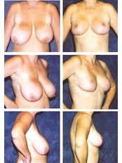 Уменьшение груди - Glow Estethica