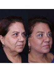 Facelift - MayClinik Plastic Surgery