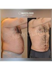 Liposuction - MayClinik Plastic Surgery