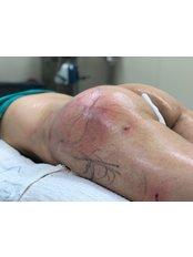 Butt Lift - MayClinik Plastic Surgery