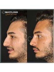 Rhinoplasty - MayClinik Plastic Surgery