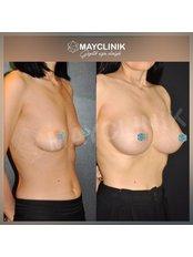 Breast Implants - MayClinik Plastic Surgery