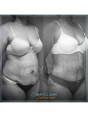 Tummy Tuck - MayClinik Plastic Surgery