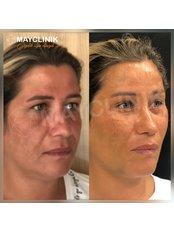 Endoscopic Facelift - MayClinik Plastic Surgery
