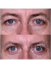 Eyelid Surgery - MayClinik Plastic Surgery