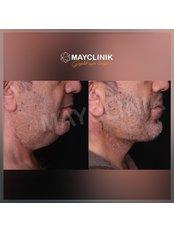 Neck Lift - MayClinik Plastic Surgery