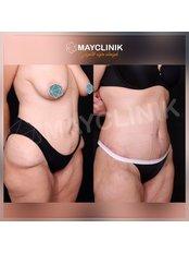 Full Abdominoplasty - MayClinik Plastic Surgery