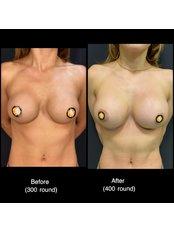 Breast implants rechange - Op. Dr. Ömer Sağır
