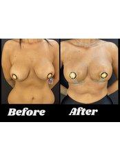 Breast lift with implant - Op. Dr. Ömer Sağır