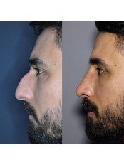 Open Rhinoplasty - Assoc. Prof. Dr. Mehmet Emre Dinc - Istanbul Rhinoplasty Center