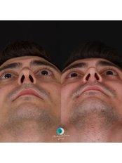 Nasal Tip Surgery - Assoc. Prof. Dr. Mehmet Emre Dinc - Istanbul Rhinoplasty Center