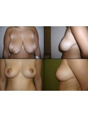 Breast Reduction - SurgeryTR - Istanbul