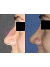 Rhinoplasty - SurgeryTR - Istanbul