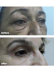 Eyelid Operation  - SurgeryTR - Istanbul