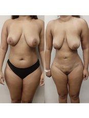 Liposuction - SurgeryTR - Istanbul