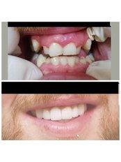 Dental Crowns - SurgeryTR - Istanbul