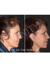 Lifting - Vanity Plastische Chirurgie Klinik