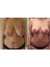 Tummy Tuck - Vanity Cosmetic Surgery Hospital İstanbul