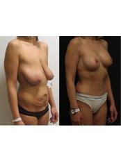 Bruststraffung - Vanity Plastische Chirurgie Klinik