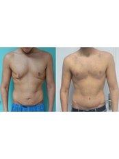 Gynecomastia - Vanity Cosmetic Surgery Hospital İstanbul